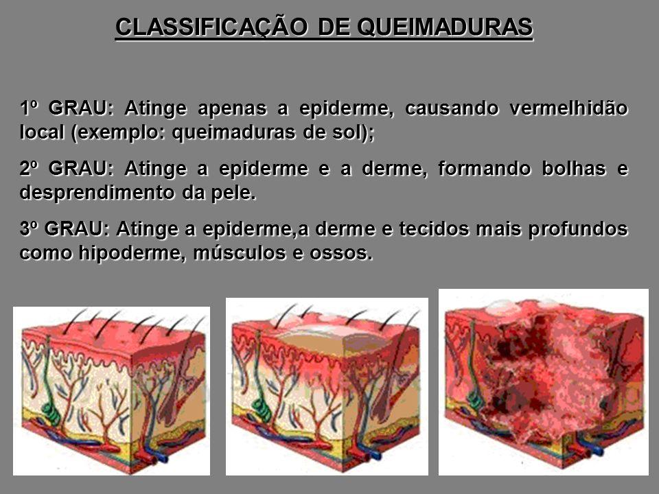 CLASSIFICAÇÃO DE QUEIMADURAS 1º GRAU: Atinge apenas a epiderme, causando vermelhidão local (exemplo: queimaduras de sol); 2º GRAU: Atinge a epiderme e