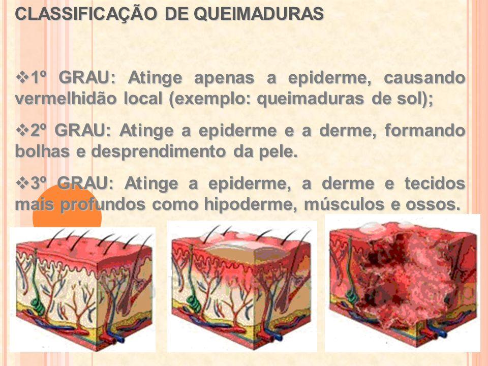 CLASSIFICAÇÃO DE QUEIMADURAS 1º GRAU: Atinge apenas a epiderme, causando vermelhidão local (exemplo: queimaduras de sol); 1º GRAU: Atinge apenas a epi