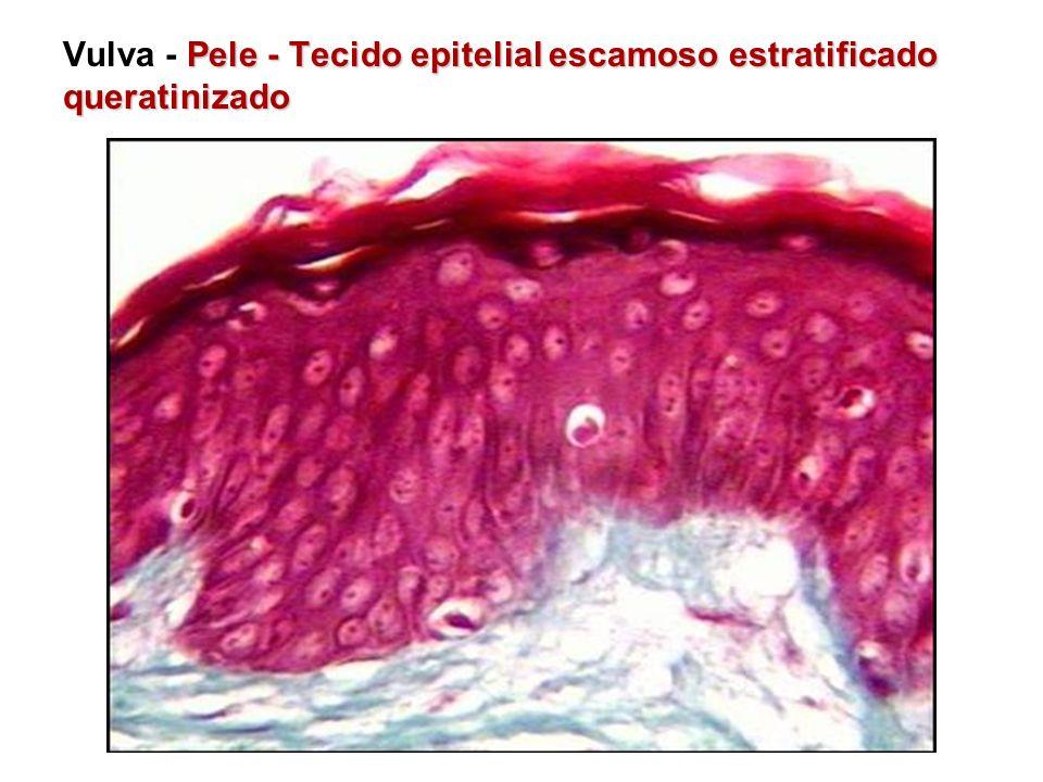 Pele - Tecido epitelial escamoso estratificado queratinizado Vulva - Pele - Tecido epitelial escamoso estratificado queratinizado