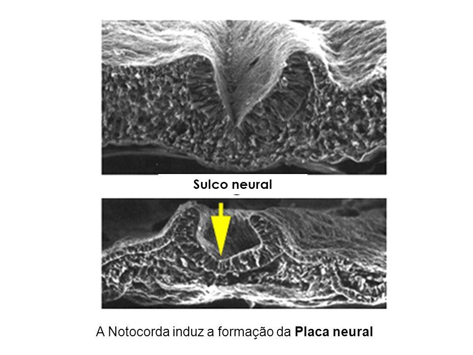 A Notocorda induz a formação da Placa neural Sulco neural