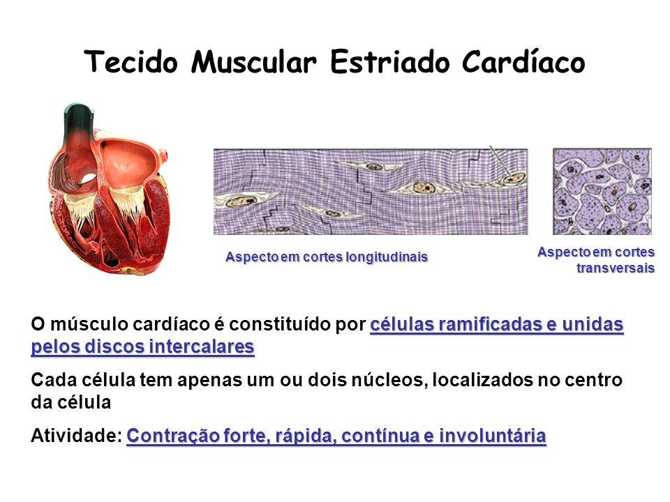 células ramificadas e unidas pelos discos intercalares O músculo cardíaco é constituído por células ramificadas e unidas pelos discos intercalares Cad