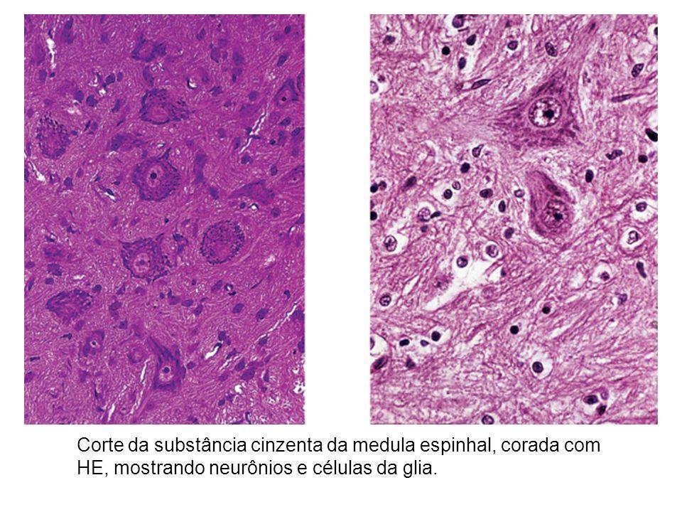 Corte da substância cinzenta da medula espinhal, corada com HE, mostrando neurônios e células da glia.