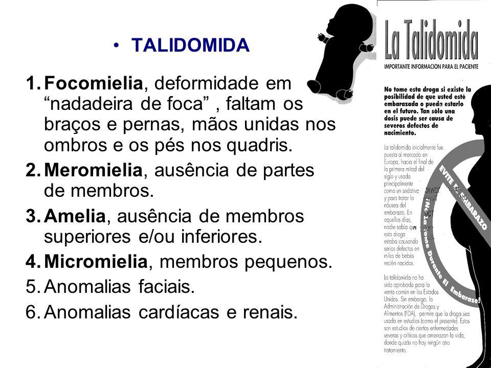 TALIDOMIDA 1.Focomielia, deformidade em nadadeira de foca, faltam os braços e pernas, mãos unidas nos ombros e os pés nos quadris. 2.Meromielia, ausên