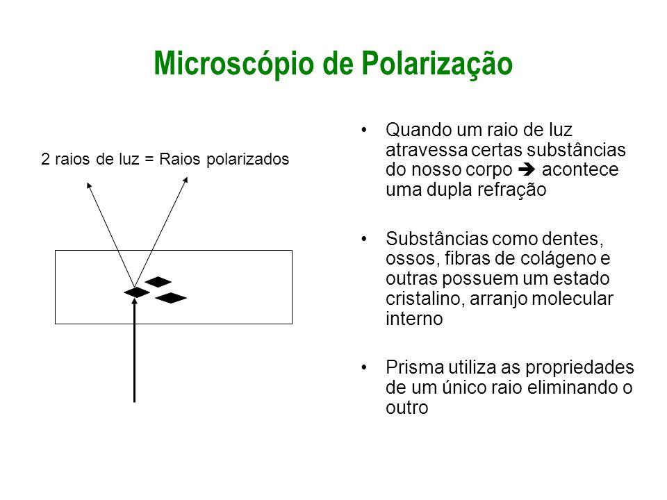 Microscópio de Polarização Quando um raio de luz atravessa certas substâncias do nosso corpo acontece uma dupla refração Substâncias como dentes, osso