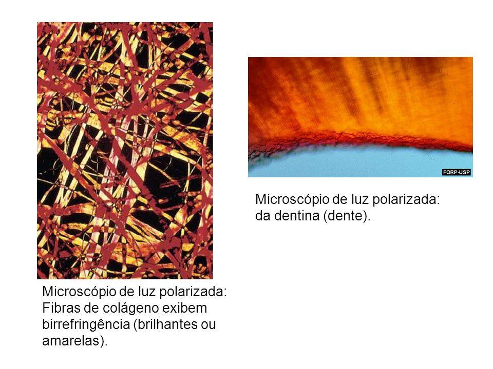 Microscópio de luz polarizada: Fibras de colágeno exibem birrefringência (brilhantes ou amarelas). Microscópio de luz polarizada: da dentina (dente).