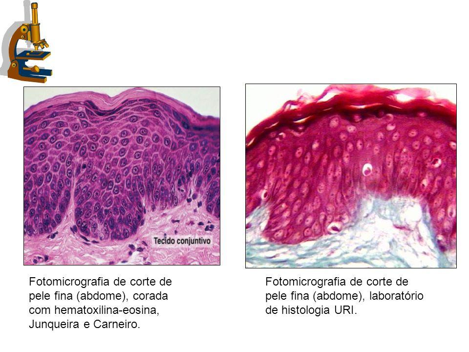 Fotomicrografia de corte de pele fina (abdome), corada com hematoxilina-eosina, Junqueira e Carneiro. Fotomicrografia de corte de pele fina (abdome),