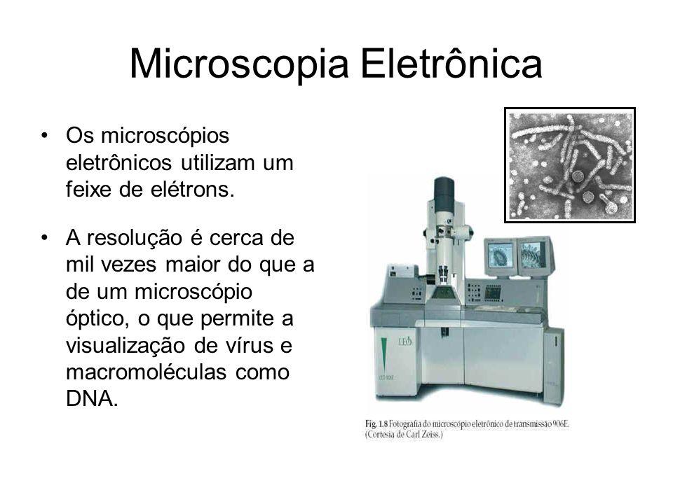 Microscopia Eletrônica Os microscópios eletrônicos utilizam um feixe de elétrons. A resolução é cerca de mil vezes maior do que a de um microscópio óp