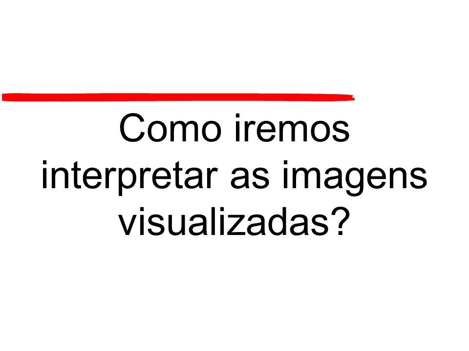 Como iremos interpretar as imagens visualizadas?