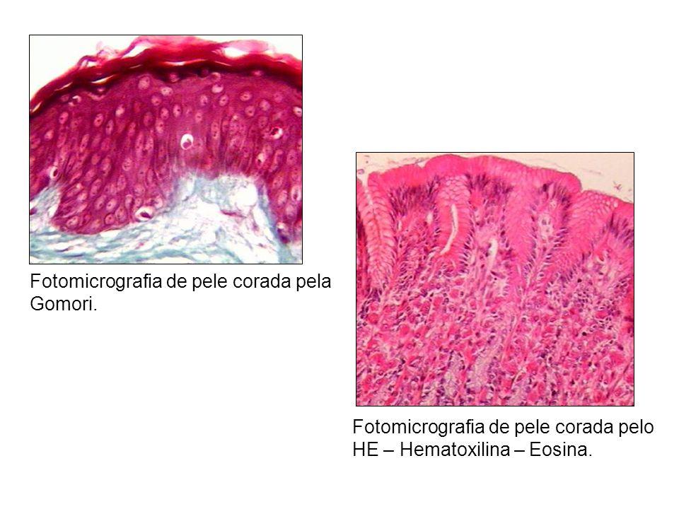 Fotomicrografia de pele corada pela Gomori. Fotomicrografia de pele corada pelo HE – Hematoxilina – Eosina.