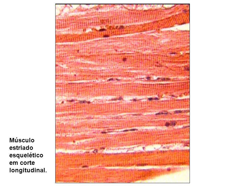 Músculo estriado esquelético em corte longitudinal.