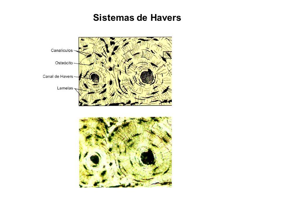 Sistemas de Havers