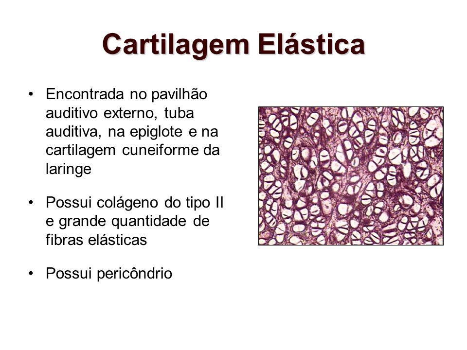 Cartilagem Elástica Encontrada no pavilhão auditivo externo, tuba auditiva, na epiglote e na cartilagem cuneiforme da laringe Possui colágeno do tipo