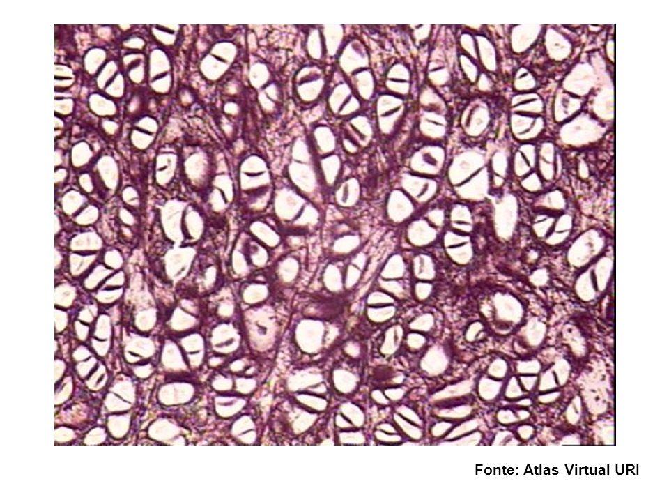 Cartilagem Fibrosa ou Fibrocartilagem Possui características intermediárias entre tecido conjuntivo denso e a cartilagem hialina Encontrada nos discos intervertebrais Condrócitos formam fileiras Colágeno tipo I