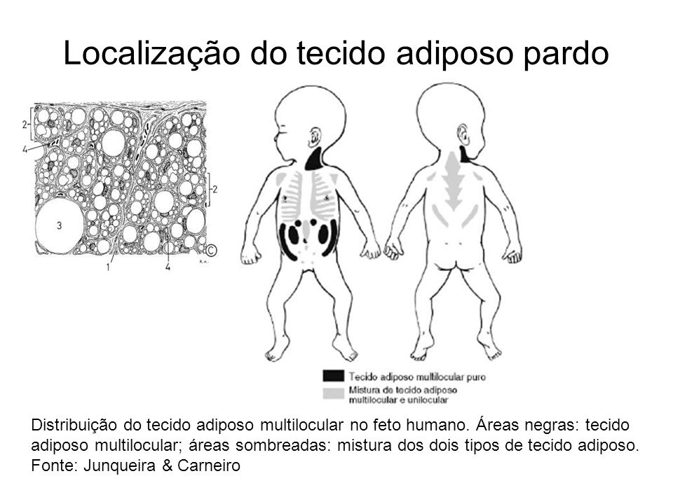 Distribuição do tecido adiposo multilocular no feto humano. Áreas negras: tecido adiposo multilocular; áreas sombreadas: mistura dos dois tipos de tec