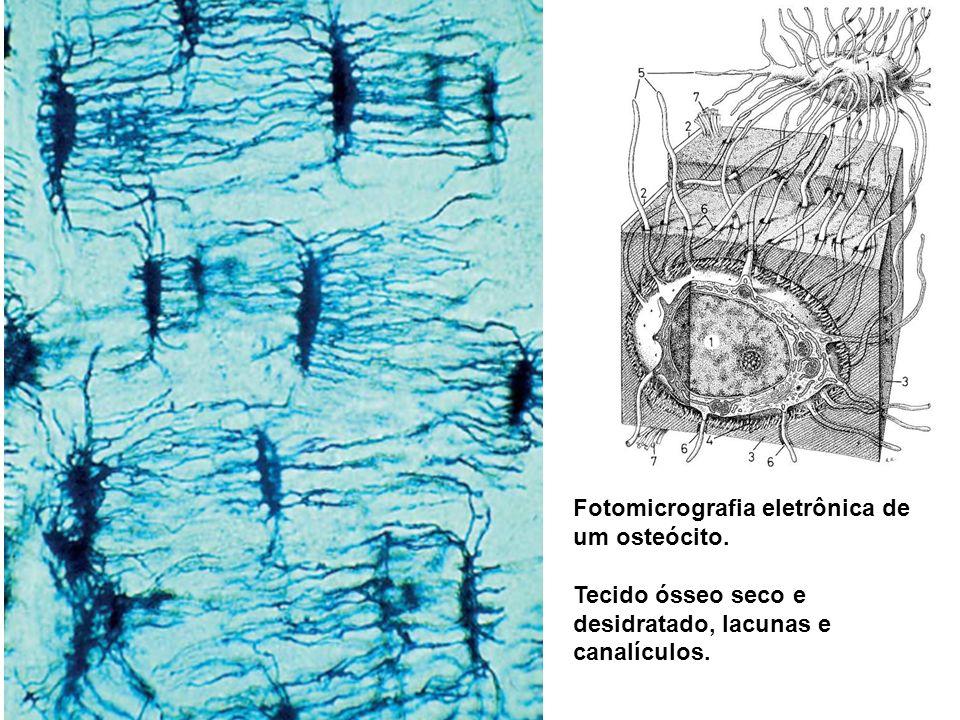 Fotomicrografia eletrônica de um osteócito. Tecido ósseo seco e desidratado, lacunas e canalículos.