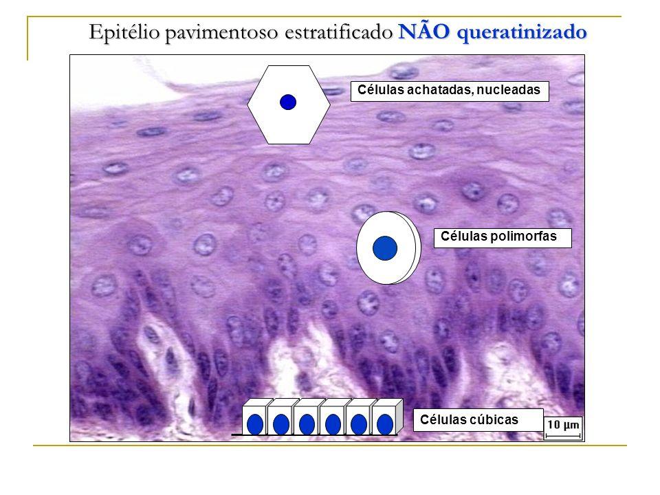 Epitélio pavimentoso estratificado NÃO queratinizado Células cúbicas Células polimorfas Células achatadas, nucleadas