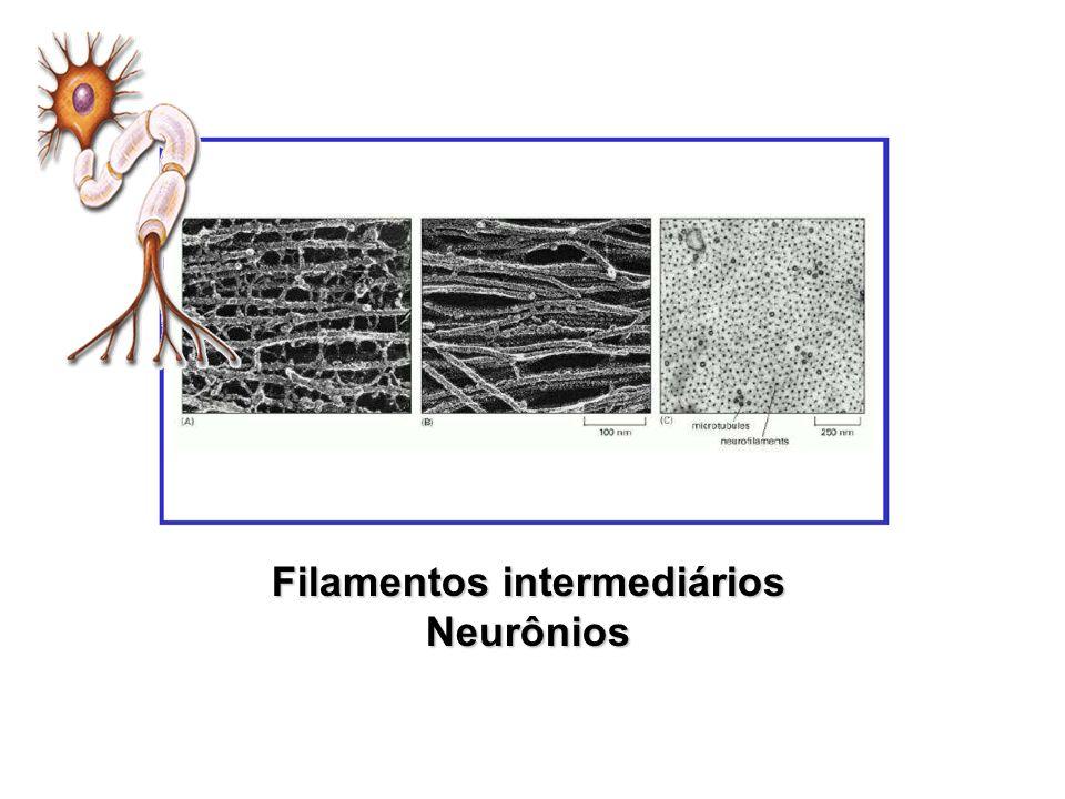 Filamentos intermediários Neurônios