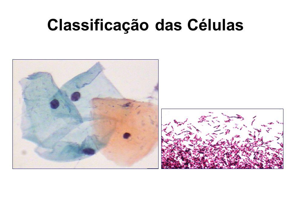 A ausência ou presença de um núcleo organizado é base para a mais simples e fundamental das classificações dos organismos vivos.