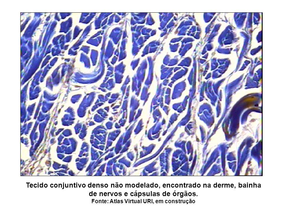 Tecido conjuntivo denso não modelado, encontrado na derme, bainha de nervos e cápsulas de órgãos.
