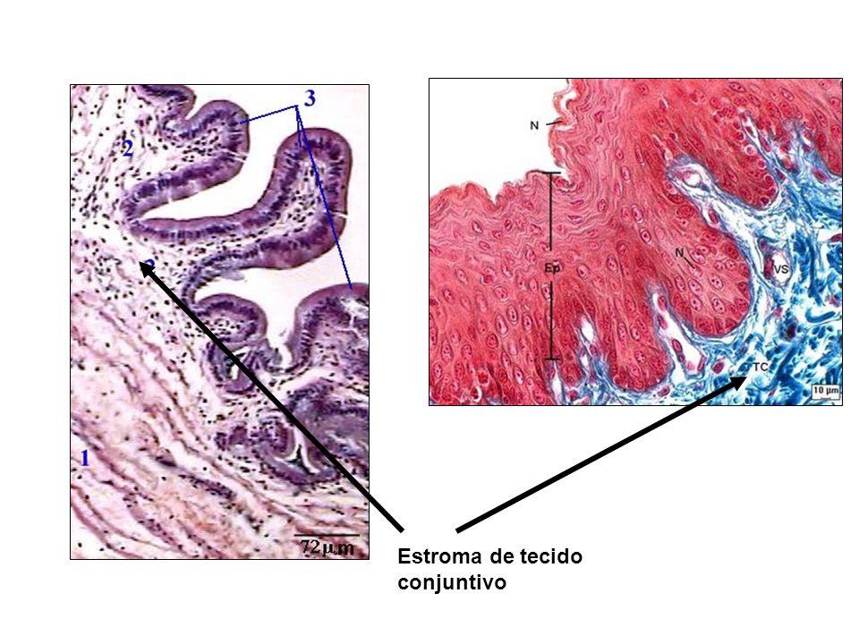 Estroma de tecido conjuntivo