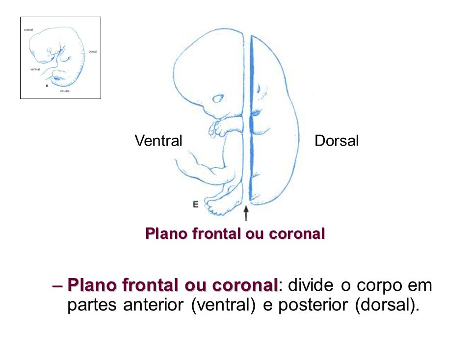 –Plano frontal ou coronal –Plano frontal ou coronal: divide o corpo em partes anterior (ventral) e posterior (dorsal). Plano frontal ou coronal Ventra