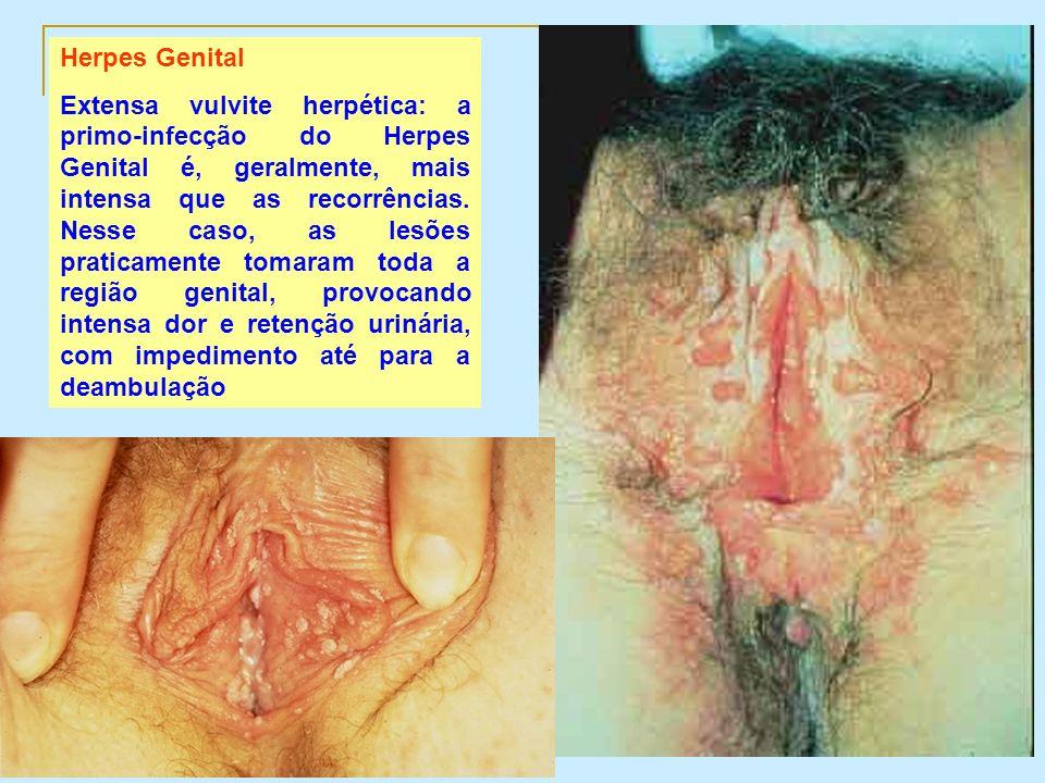 Herpes Genital Extensa vulvite herpética: a primo-infecção do Herpes Genital é, geralmente, mais intensa que as recorrências. Nesse caso, as lesões pr