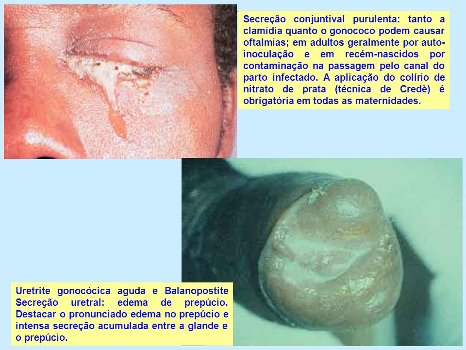 Secreção conjuntival purulenta: tanto a clamídia quanto o gonococo podem causar oftalmias; em adultos geralmente por auto- inoculação e em recém-nasci