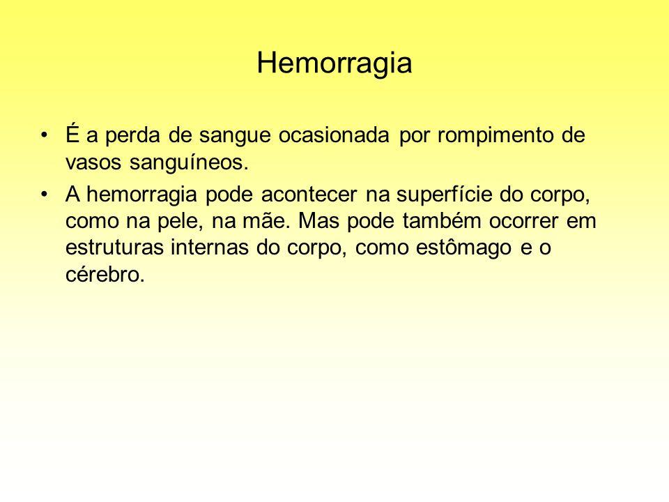 Hemorragia É a perda de sangue ocasionada por rompimento de vasos sanguíneos.
