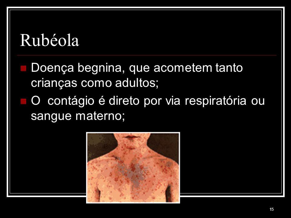 15 Rubéola Doença begnina, que acometem tanto crianças como adultos; O contágio é direto por via respiratória ou sangue materno;