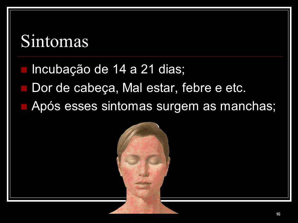 16 Sintomas Incubação de 14 a 21 dias; Dor de cabeça, Mal estar, febre e etc. Após esses sintomas surgem as manchas;