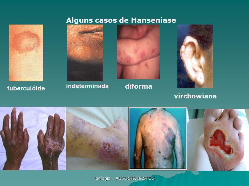 Biologia - AUGUSTA BASTOS Alguns casos de Hanseniase tuberculóide indeterminada virchowiana diforma