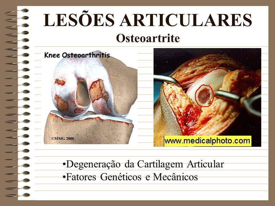LESÕES ARTICULARES Osteoartrite Degeneração da Cartilagem Articular Fatores Genéticos e Mecânicos