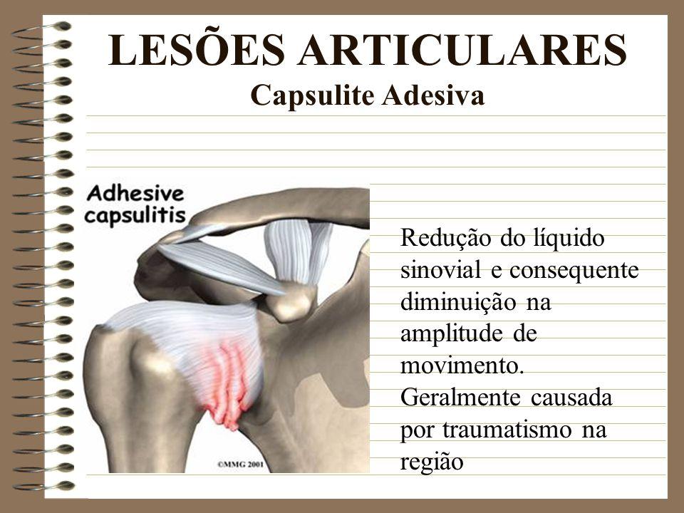 LESÕES ARTICULARES Capsulite Adesiva Redução do líquido sinovial e consequente diminuição na amplitude de movimento. Geralmente causada por traumatism