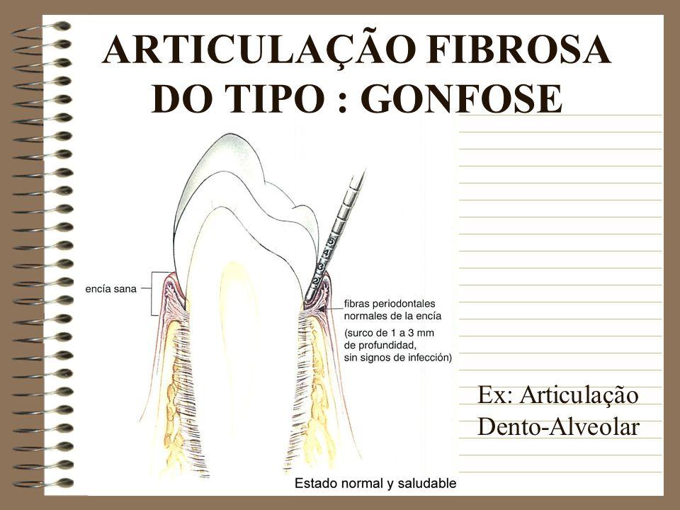 ARTICULAÇÃO FIBROSA DO TIPO : GONFOSE Ex: Articulação Dento-Alveolar