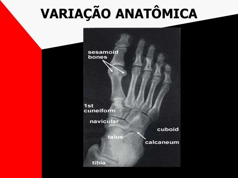 VARIAÇÃO ANATÔMICA
