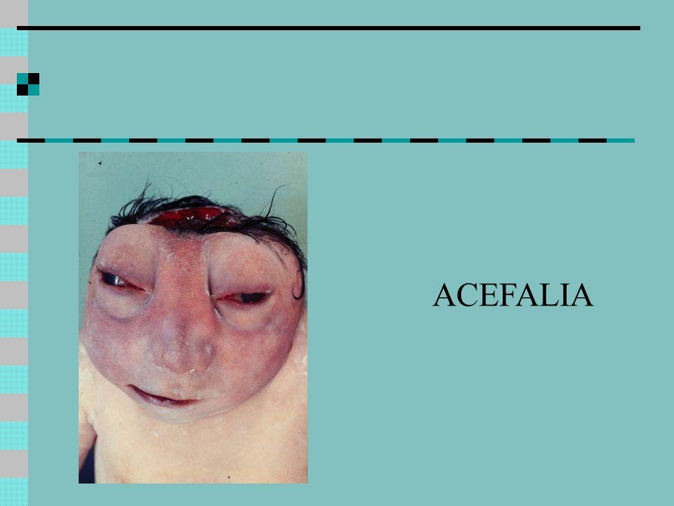 ACEFALIA