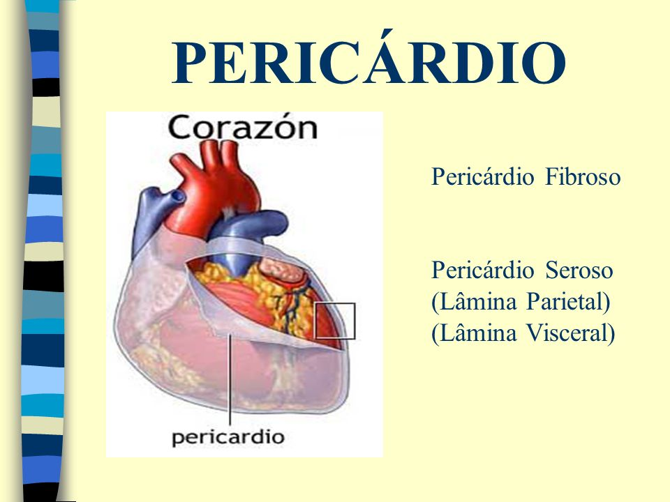 PERICÁRDIO Pericárdio Fibroso Pericárdio Seroso (Lâmina Parietal) (Lâmina Visceral)
