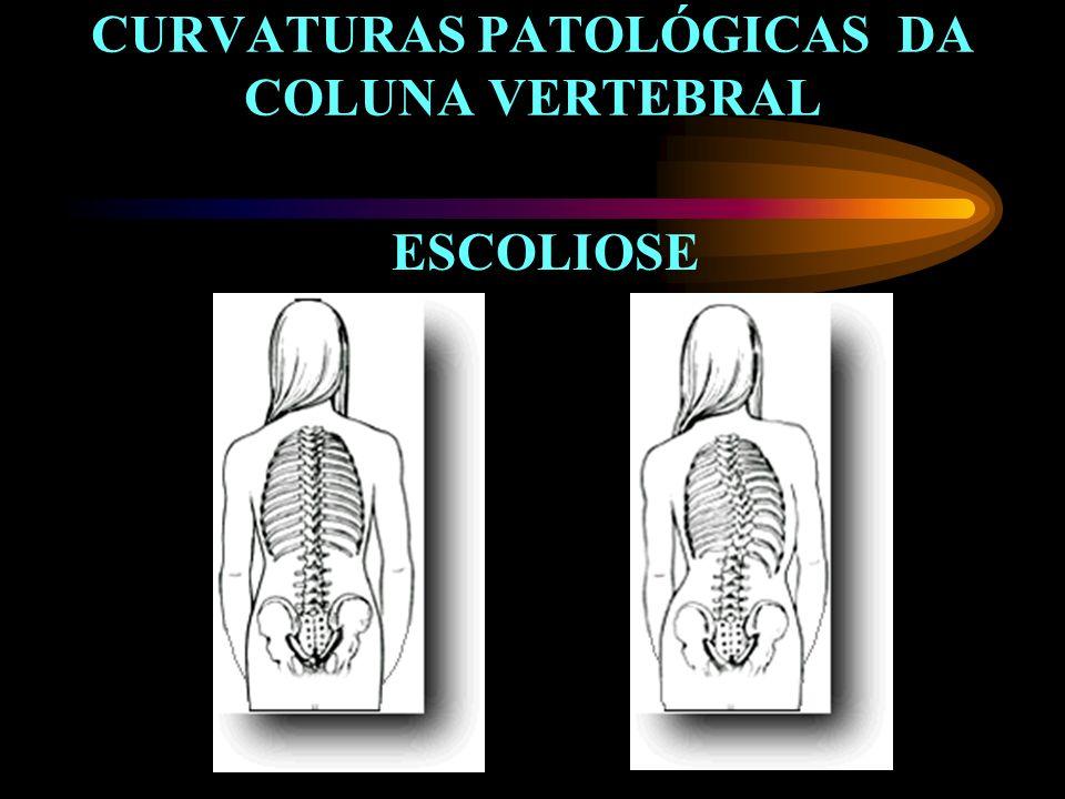 CURVATURAS PATOLÓGICAS DA COLUNA VERTEBRAL ESCOLIOSE