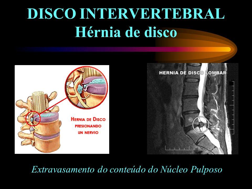 DISCO INTERVERTEBRAL Hérnia de disco Extravasamento do conteúdo do Núcleo Pulposo