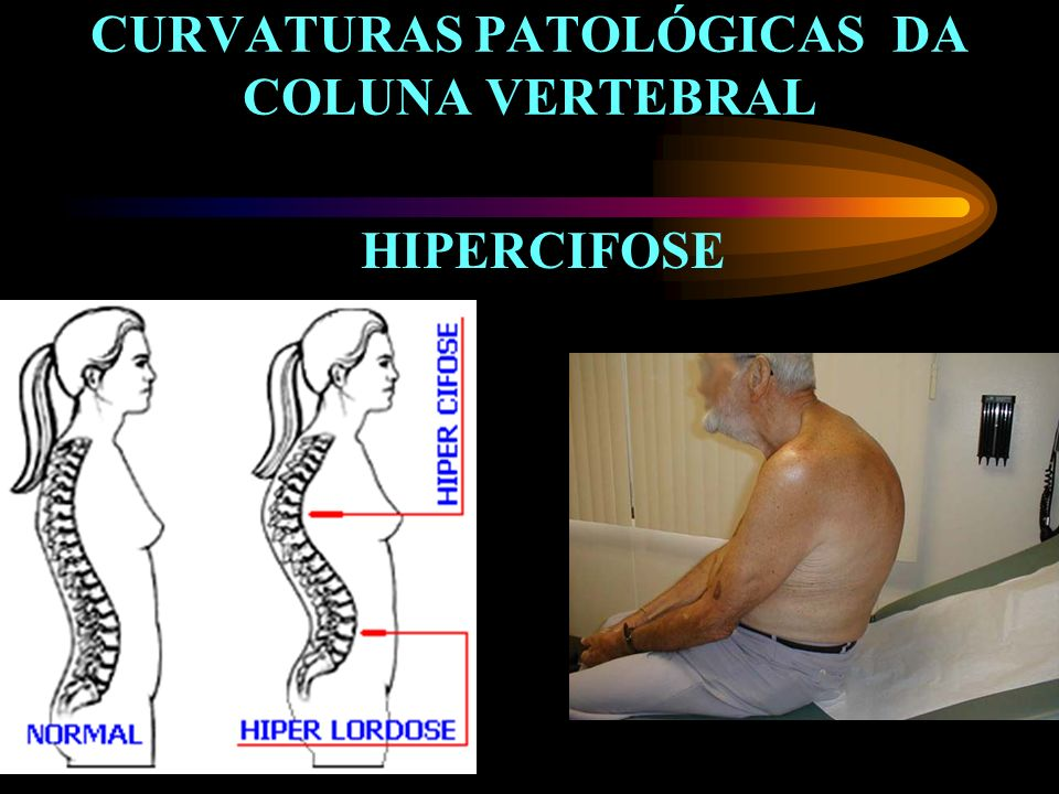 CURVATURAS PATOLÓGICAS DA COLUNA VERTEBRAL HIPERCIFOSE