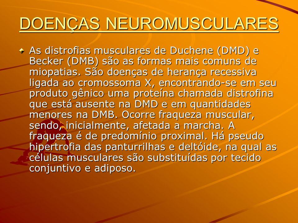DOENÇAS NEUROMUSCULARES As distrofias musculares de Duchene (DMD) e Becker (DMB) são as formas mais comuns de miopatias. São doenças de herança recess