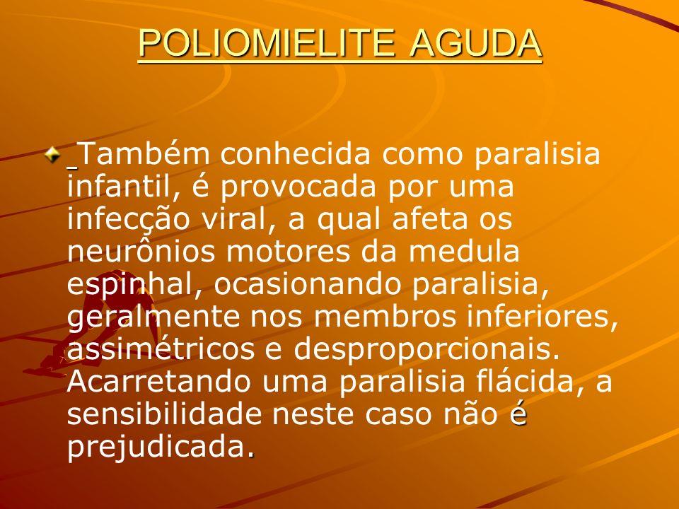 POLIOMIELITE AGUDA é. Também conhecida como paralisia infantil, é provocada por uma infecção viral, a qual afeta os neurônios motores da medula espinh