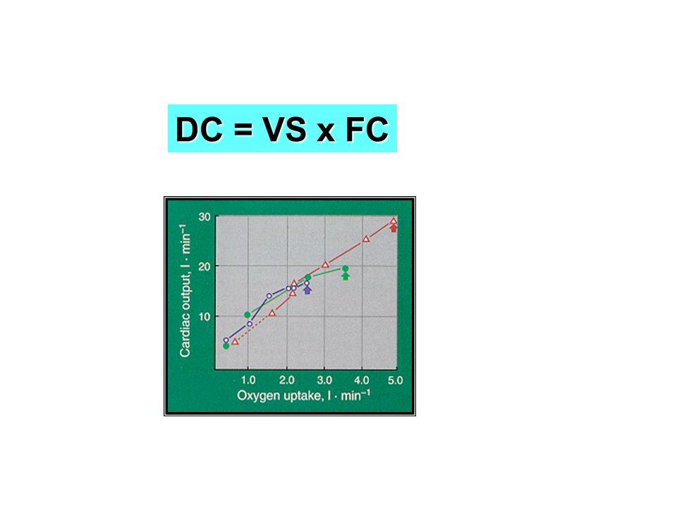 DC = VS x FC