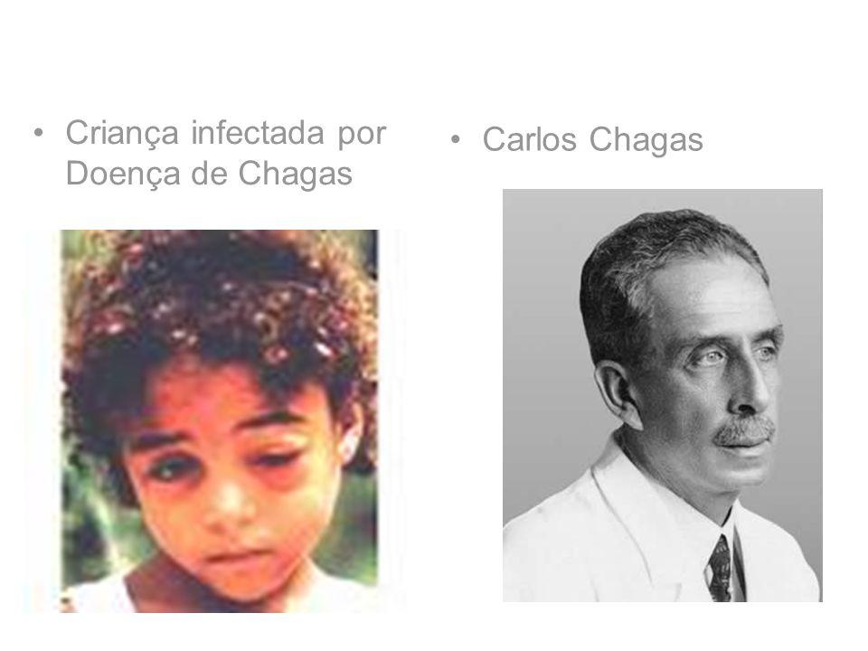 Criança infectada por Doença de Chagas Carlos Chagas