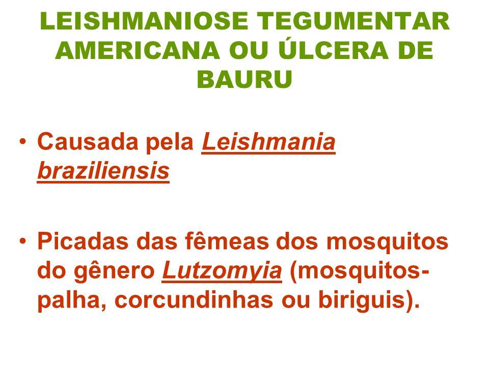 LEISHMANIOSE TEGUMENTAR AMERICANA OU ÚLCERA DE BAURU Causada pela Leishmania braziliensis Picadas das fêmeas dos mosquitos do gênero Lutzomyia (mosquitos- palha, corcundinhas ou biriguis).