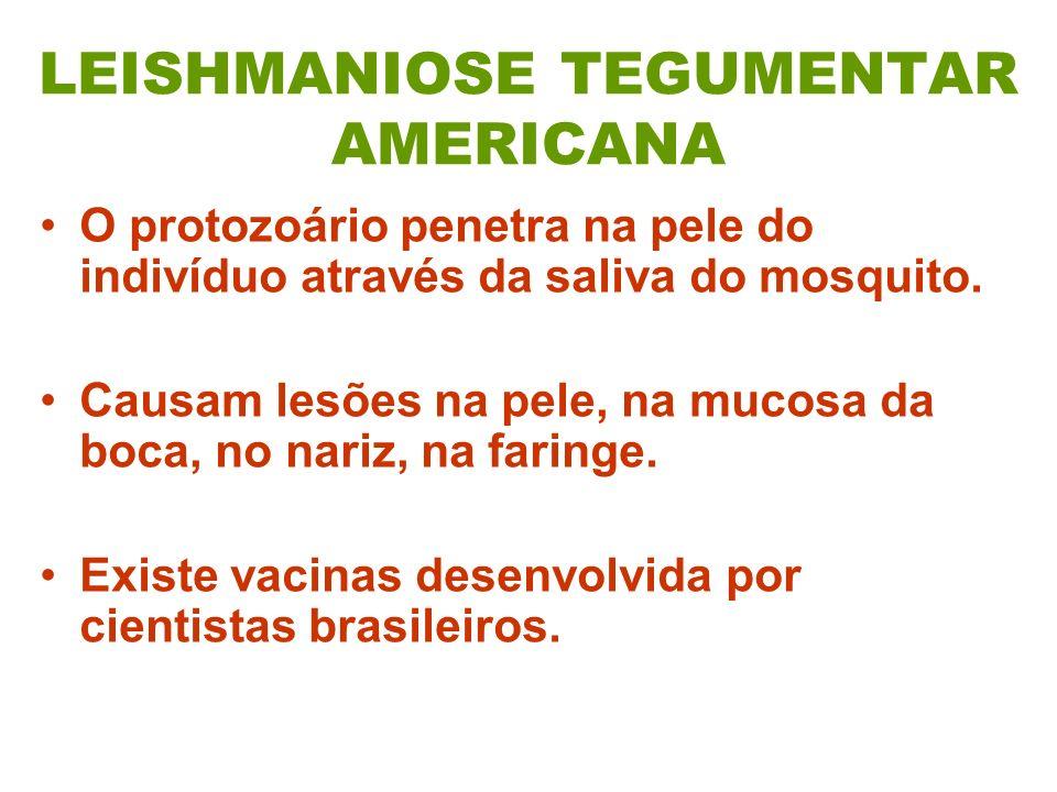 LEISHMANIOSE TEGUMENTAR AMERICANA O protozoário penetra na pele do indivíduo através da saliva do mosquito. Causam lesões na pele, na mucosa da boca,