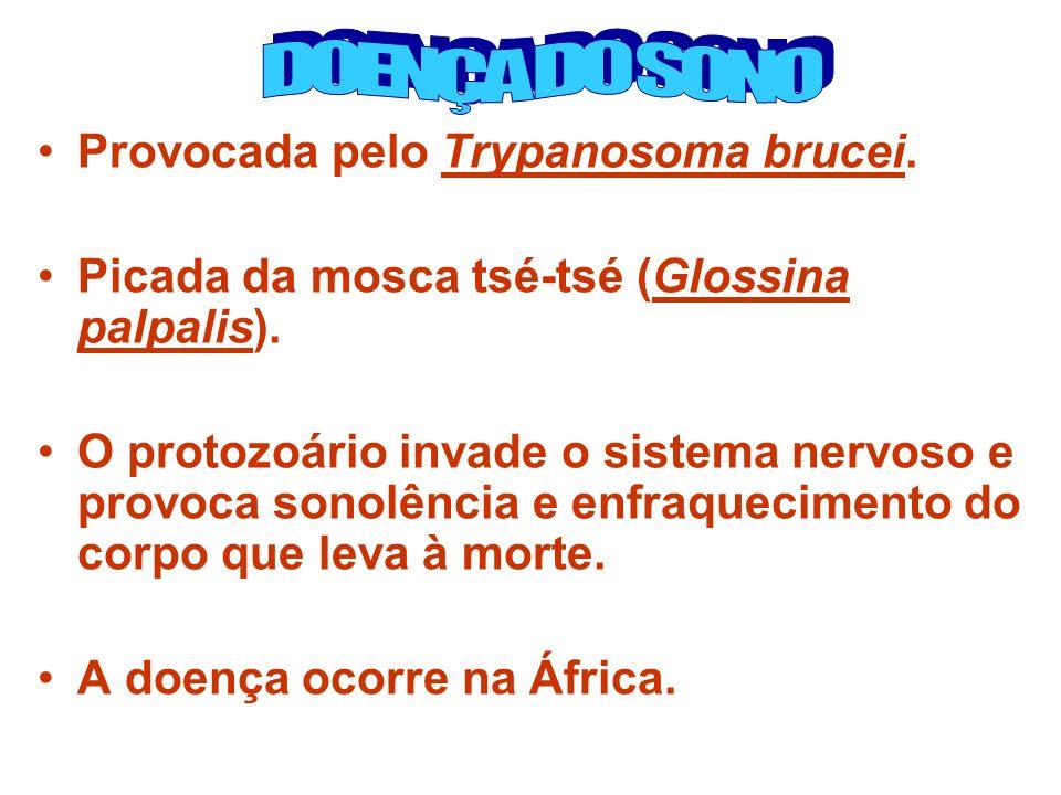 Provocada pelo Trypanosoma brucei.Picada da mosca tsé-tsé (Glossina palpalis).