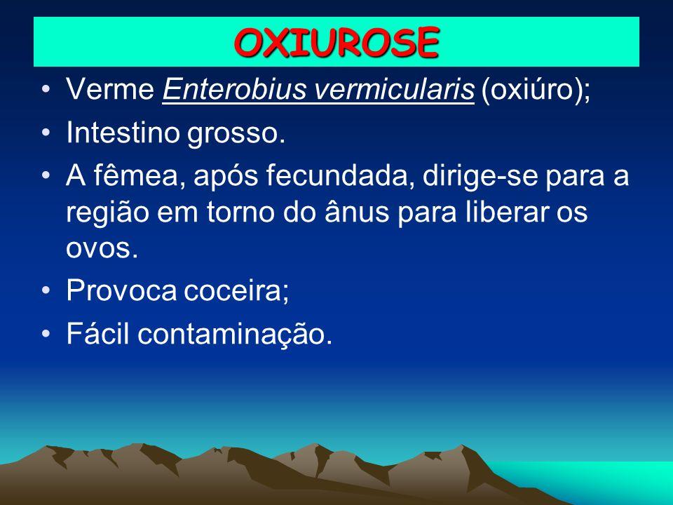 OXIUROSE Verme Enterobius vermicularis (oxiúro); Intestino grosso. A fêmea, após fecundada, dirige-se para a região em torno do ânus para liberar os o