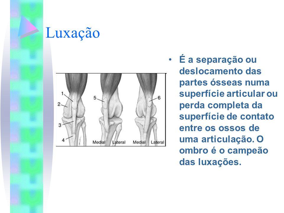 Luxação É a separação ou deslocamento das partes ósseas numa superfície articular ou perda completa da superfície de contato entre os ossos de uma art
