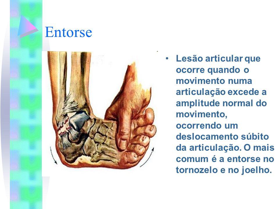 Entorse Lesão articular que ocorre quando o movimento numa articulação excede a amplitude normal do movimento, ocorrendo um deslocamento súbito da art